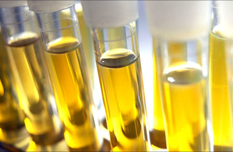 What Exactly Does Synthetic Urine Refers To